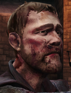 TID Duncan Bloodied
