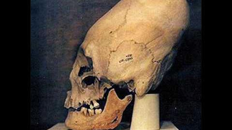 Proof that Conehead skulls are ETs. Extraterrestrial fossils in museums now! We now know the truth!