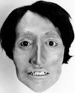 Onondaga County John Doe (1976)