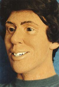 8702242 facial reconstruct d