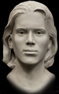 Shafter Jane Facial Reconstruction