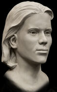 Shafter Jane Facial Reconstruction2