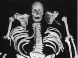 Kolb Skeleton