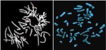 Visualizing a gene