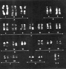 Karyotype isochromosomeX