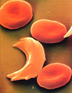 SickleCell 1222183673073