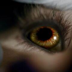 Tyler's eye