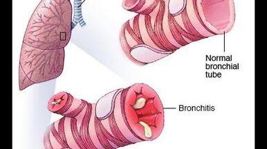 Bronchitis (PEV)-0