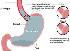 Understanding heartburn