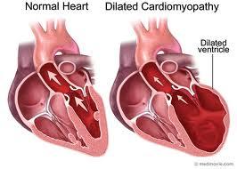 Cardiac-Arrhythmias