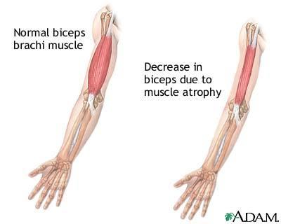 File:Muscular-dystrophy.jpg