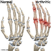 Hand finger joint causes01
