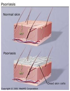 Understanding psoriasis basics