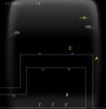 Lv210oclockplanetscreen3.png