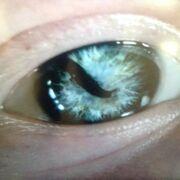 Sigurd-snake-in-th-eye