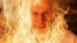 Smoking man burned