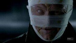 Disfigured David Robert Jones