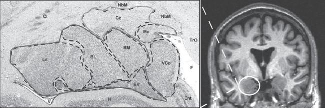 Amygdala nuclei