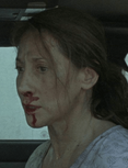 Season ten injured woman