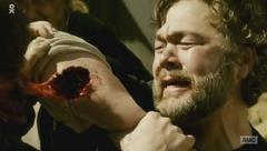 Season two Connor's Bitten (2)