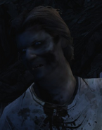 AND Chet Zombie