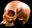 Ambrose Bierce's Skull