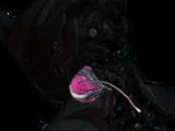 Гельминтный Инфестоид