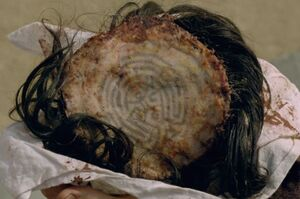 The Maze scalp