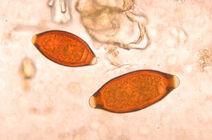Eggs of Trichuris trichiura and Trichuris vulpis 06G0018 jpg lores