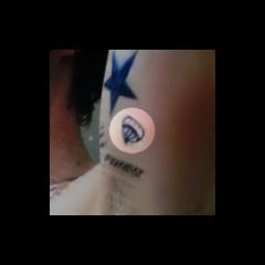 <b>Joya helada</b> en la parte inferior del brazo izquierdo (25 de julio 2012)