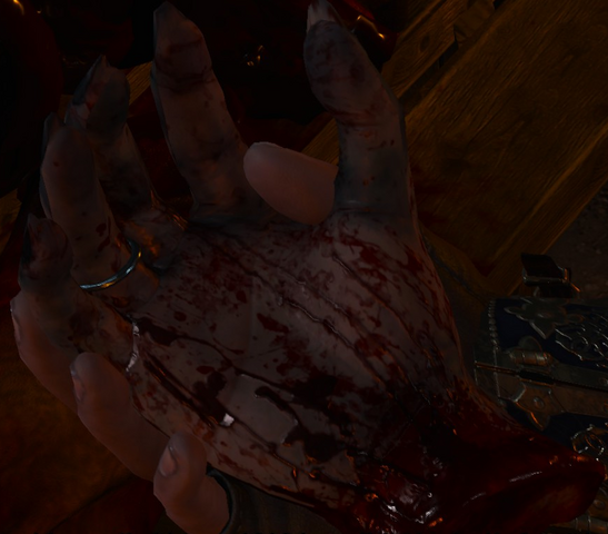 File:Tw3 Unusual severed hand detail.png