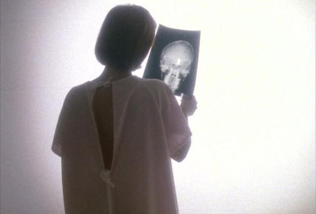 File:Scully tumor x-ray light Memento Mori.jpg
