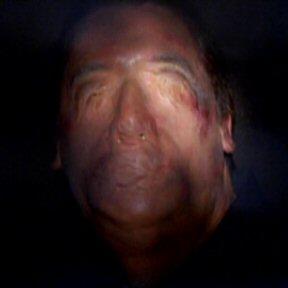 File:Faceless crash survivor.jpg