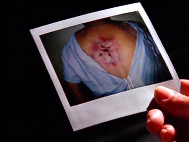 File:Flukeman wound in photograph.jpg