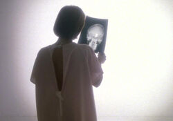 Scully radiographie Journal de Mort cancer