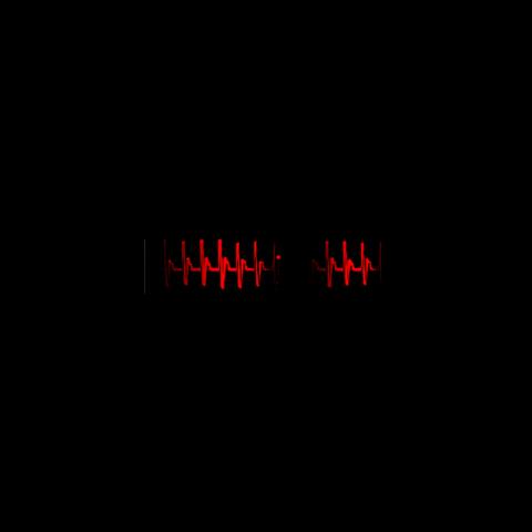 Electrocardiograma Errático Actual.