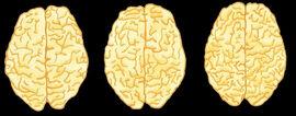 Drei Gehirne