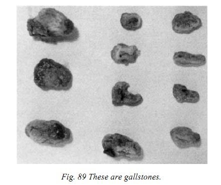 CFAD fig89 these are gallstones