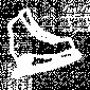 Levi birthmark